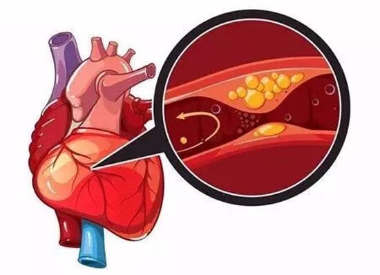 血管如水管 一堵就危险 清理血管 离不开健康养生!